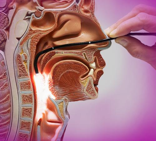 Эндоскопия носа и носоглотки детям и взрослым в Днепре